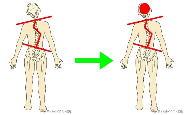 体の歪み-horz頭痛