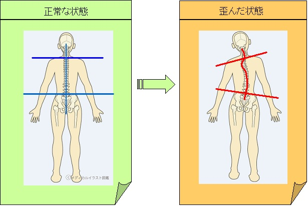 身体の歪み1 基本