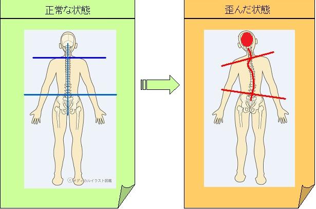 体の歪みとアトピー性皮膚炎の関係