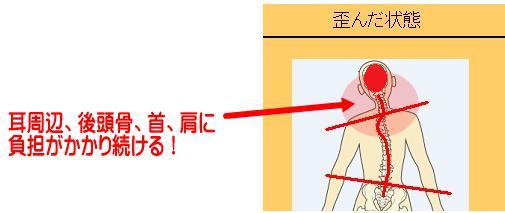 歪みと首、肩の関係