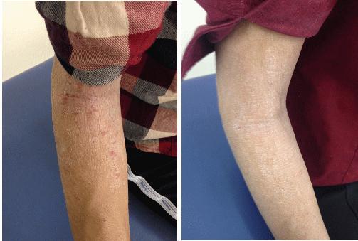 アトピー性皮膚炎 患者さん(Kさん)