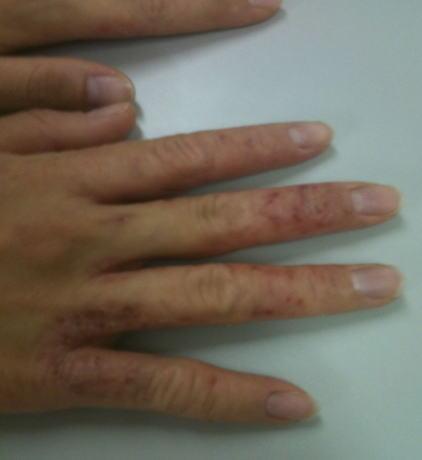 アトピー性皮膚炎(手)