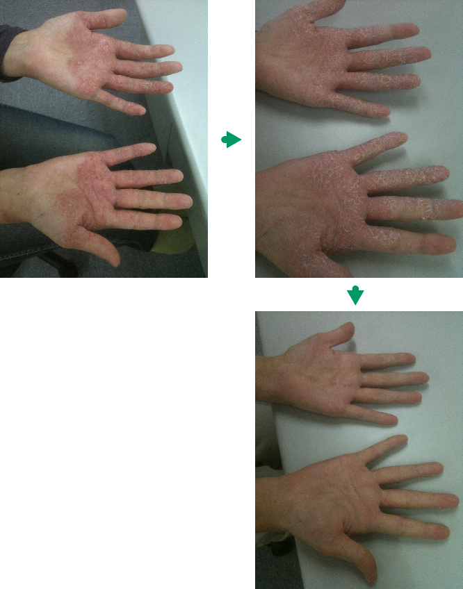 手の湿疹の変化