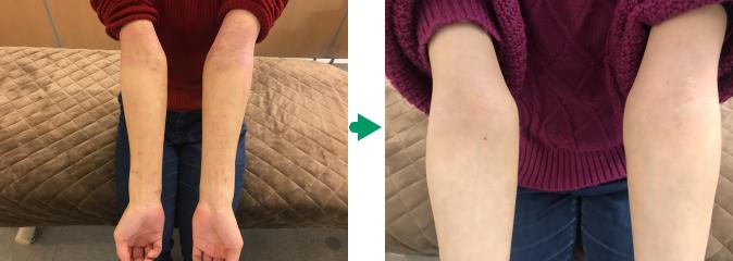 肘の湿疹の変化