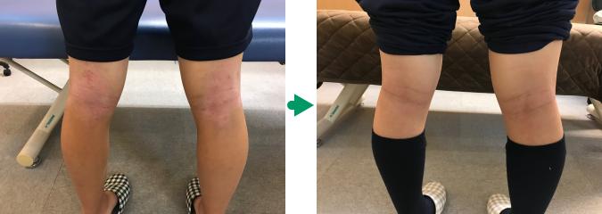 膝裏のアトピーの変化