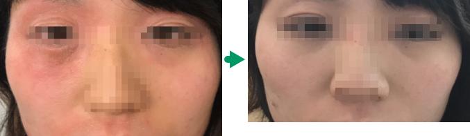 顔のアトピーの変化