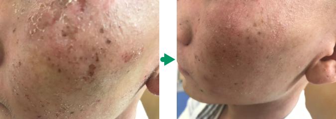 顔の湿疹の改善