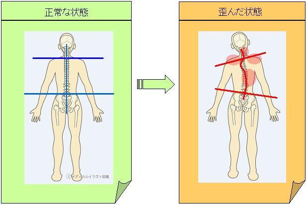 体の歪み(肩こり)2