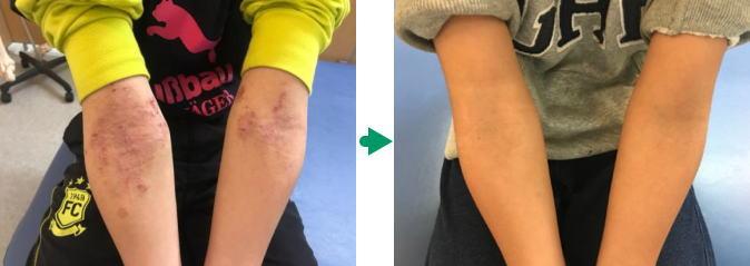 アトピー肘の変化