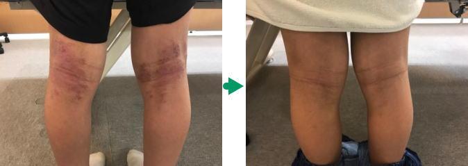 アトピー膝裏の変化