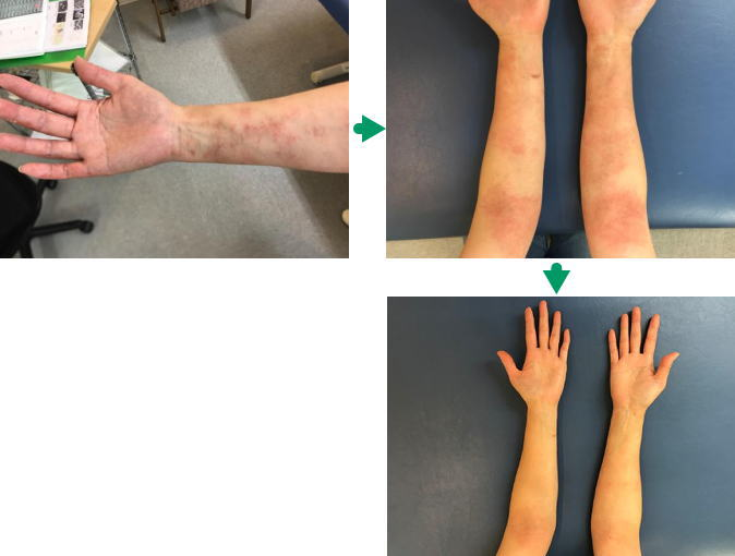 手首の湿疹の変化